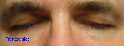 Photo of Dr. Kolegraff's eyelashes after using Latisse® on just his right eyelash.