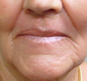 female with notable lip improvement 32 days after a laser peel.