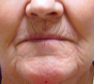 female with notable lip lines before a laser peel.