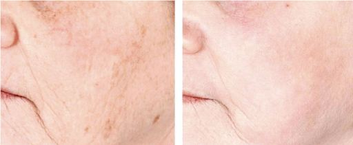 female with notable improvement after a 40 micron laser peel.