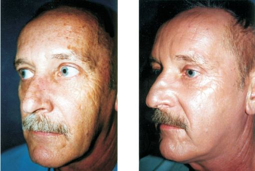 Male with great improvement after a laser peel