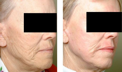 female with notable improvement after laser peel and Botox.