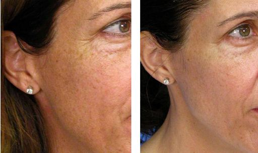 female with notable improvement after 4 very superficial laser peels.
