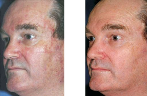 male with notable improvement after a laser peel.