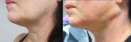 Photo left side of Dr. Kolegraff's second patient at re*be® to undergo a Silhouette_Lift on just the neck.
