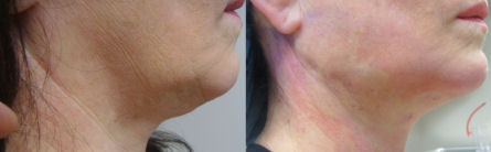 Photo of right side of Dr. Kolegraff's second patient at re*be® to undergo a Silhouette_Lift on just the neck.