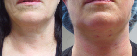 Photo of Dr. Kolegraff's second patient at re*be® to undergo a Silhouette_Lift on just the neck.