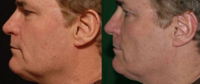 Photo of Dr. Kolegraff, the first patient from re*be® to have a Silhouette-Lift®, left side before and after.