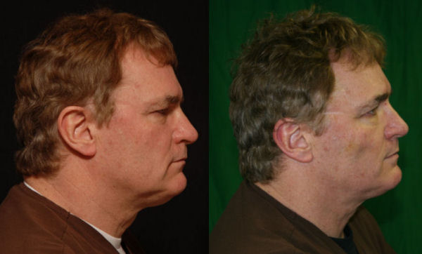 Photo of Dr. Kolegraff's right side after the Silhouette-Lift® 5 days later view of the right side of the face.