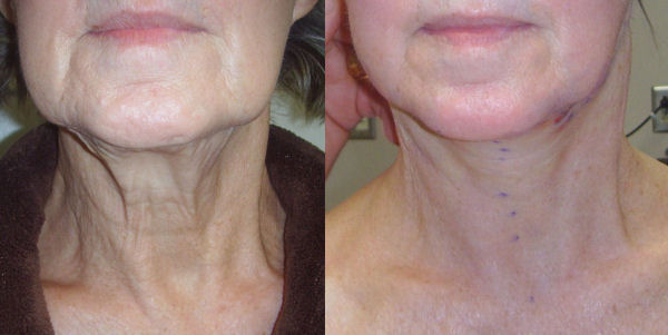 Photo of Dr. Kolegraff's first patient at re*be® to undergo a Silhouette_Lift on just the neck.