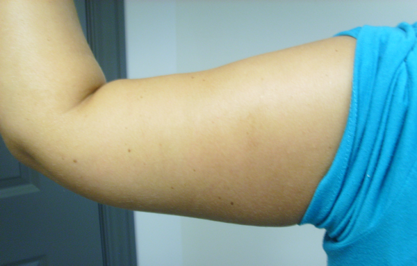 Photo right arm after laser liposuction and excision of extra skin