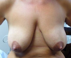 Photo of patient with severe breast ptosis before treatment