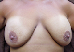 Photo of patient with severe breast ptosis after breast implants done under local but before the breast lift