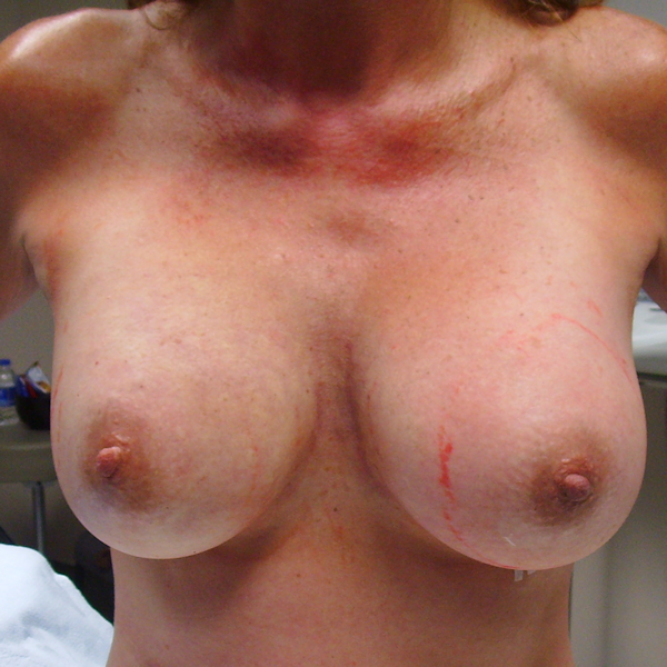 Photo of breasts immediately after implant surgery