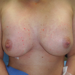 Breast implants patient just prior to local anesthesia augmentation