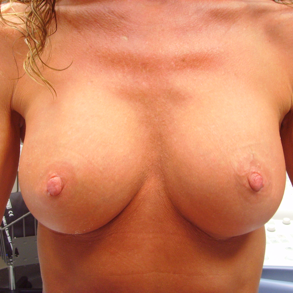 Photo of breasts 3 months after implants were placed