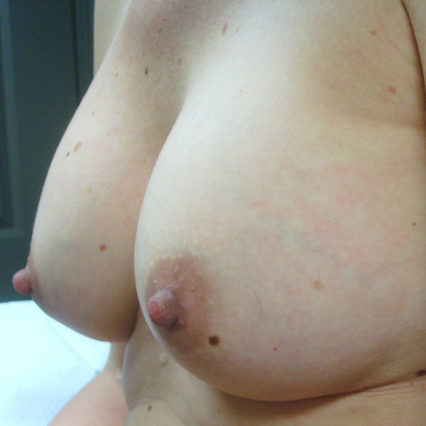 Photo of breasts 3 months after implant surgery