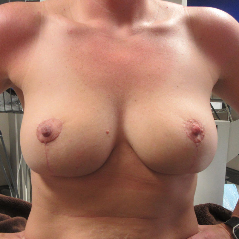 photo of breast lift patient about 1 months after the surgical procedure