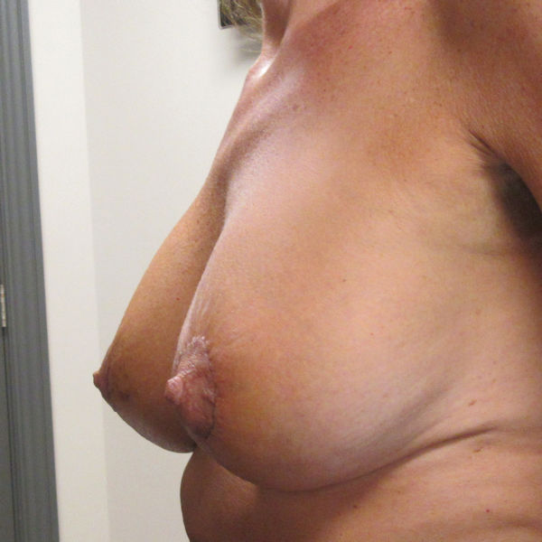 Photo of patient who had a breast augmentation and then a staged breast lift 1 week after breast lift surgery
