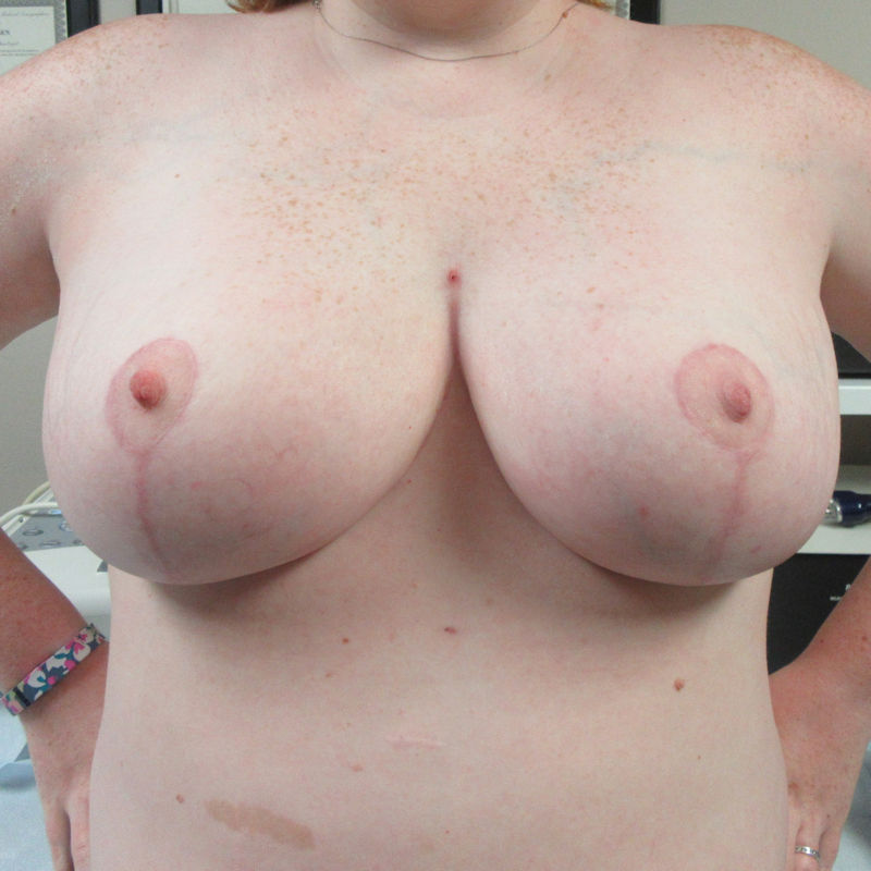 photo of breast reduction patient about 3 months after the surgical procedure