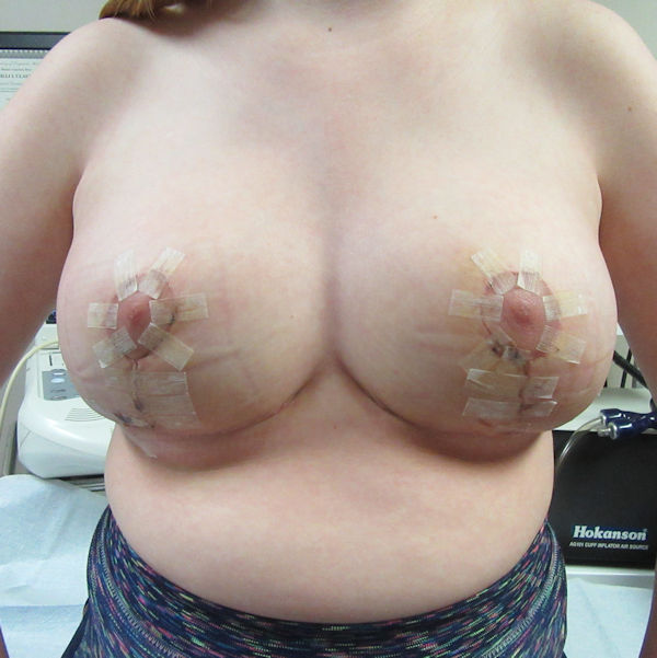 Photo of breasts one week after reduction surgery