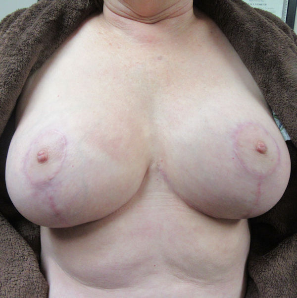Photo of breasts several months after reduction surgery