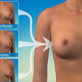 photo from the silicone breast implant video used as an icon for for the Understand.com video button