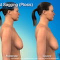 photo from the breast lift video start page used as an icon for the breast lift video button