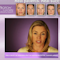 photo from the start page of the Botox treatment videos used as an icon for the video button