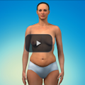 photo of the mini tummy tuck video used as an icon for the mini tummy tuck video