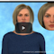 photo from the start page of the Understand.com Botox treatment video used as an icon for the video button