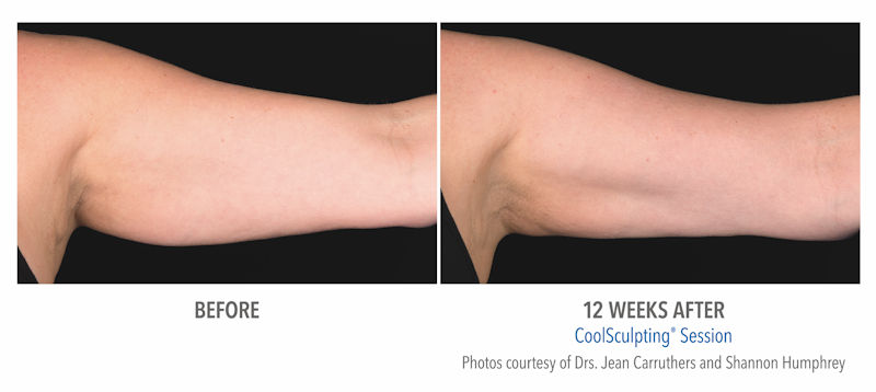 photo of coolsculpting® results before and after on the upper arms (Zeltiq photo).