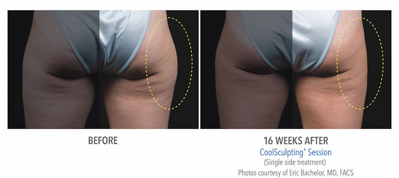 photo of coolsculpting® results before and after on the hips (Zeltiq photo).