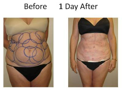 photo of patient before and one day after laser liposuction