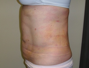 photo of post upper and lower abdomen touch up and flanks less than one week later