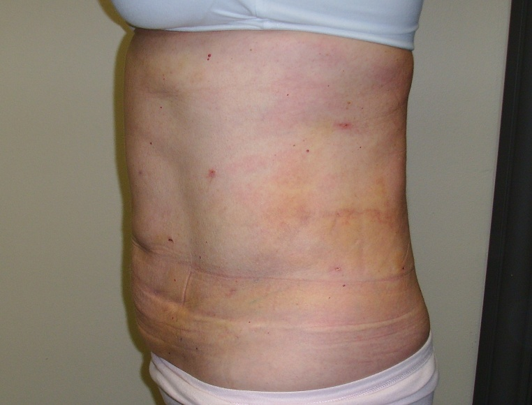 Laser Liposuction Re Be Okoboji Iowa 712 332 6001