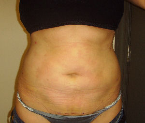 Photos of love handles 4 days after laser liposuction done at re*be® of Okoboji