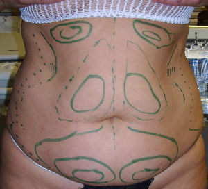 Before the laser liposuction procedure image of markings on abdomen front view.