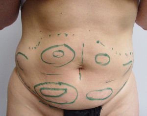 Prolipo liposuction image of markings prior to laser liposuction front lower stomach