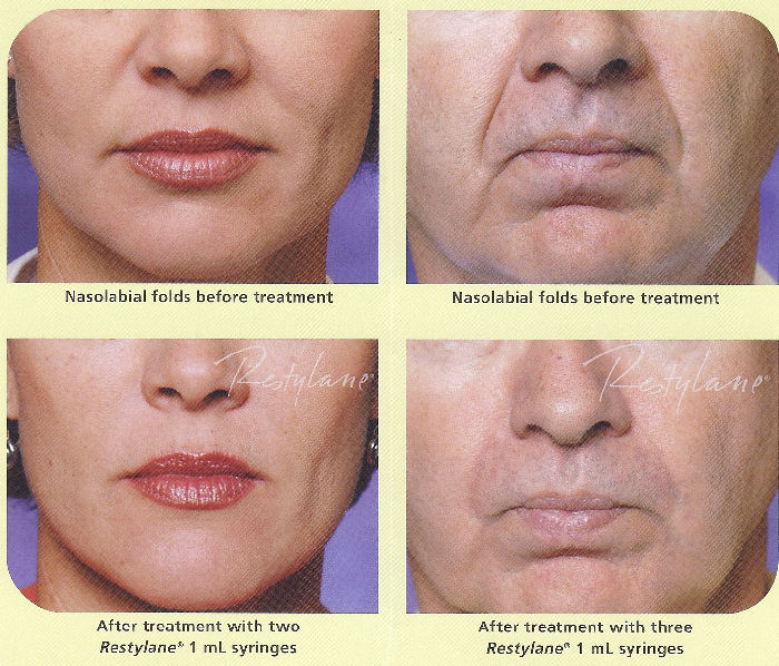Photo of nasolabial folds before and after filler injection