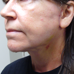 Photo of another necklift following the surgery