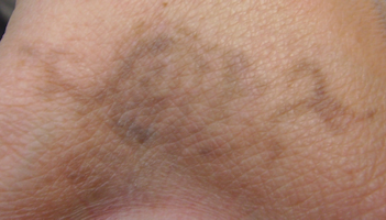 Photo hand tattoo before any treatments with the laser