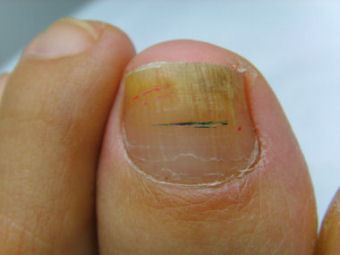 Photos of the left great toe several weeks after the second laser treatment