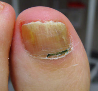 Toe fungus @ re*be® Okoboji, Iowa (712)332-6001