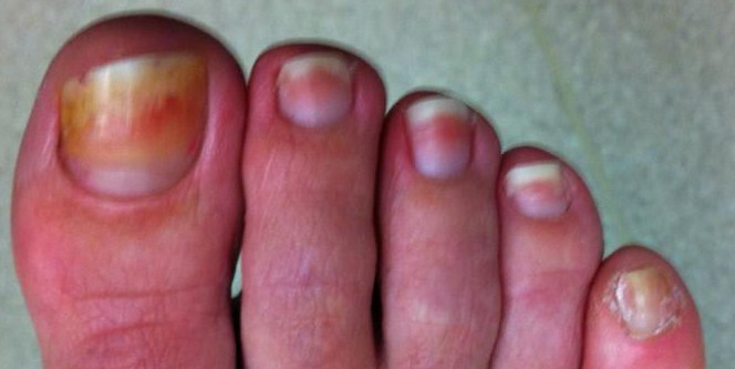 Toe fungus at re*be® of Okoboji in Northwest Iowa(712)332-6001