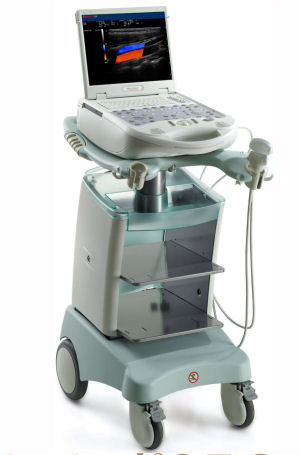 Photo of the MyLab25 Gold portable ultrasound machine used for ultrasound guided sclerotherapy