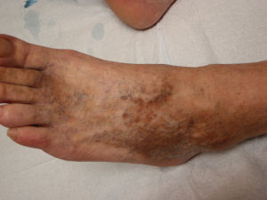 Photo of the top of oa foot stained with combination of sunburn and sclerotherapy
