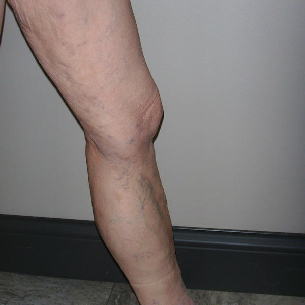 Photo of treated varicose veins