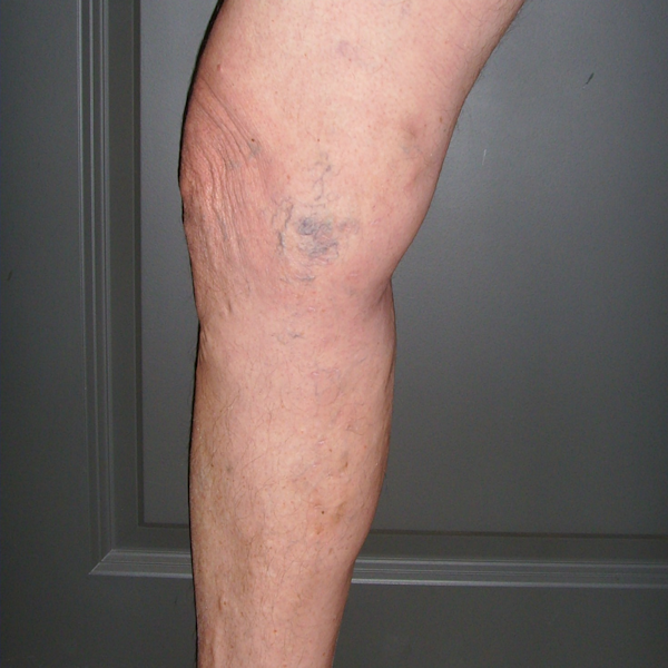 Photo of another treated varicose vein